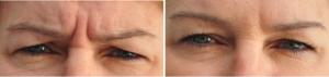 Fronsrimpel Botox behandeling